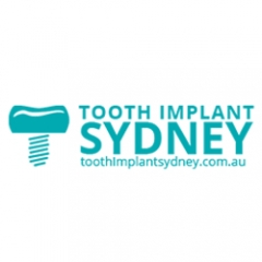 Tooth Implant SydneySydney, NSW 2000